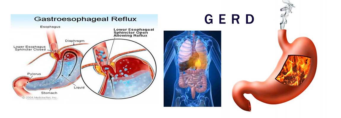 GERD atau Penyakit Asam Lambung Meningkat