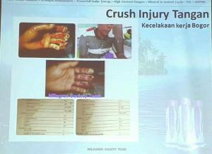 Korban kecelakaan kerja._jari hancur._dlm 10 hari luka mengering n tumbuh kulit baru stlh terapi dgn mila