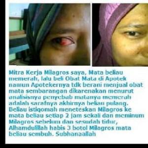 Sakit Mata yang sembuh Milagros