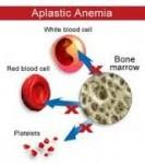 anemia aplastik penyakit