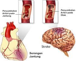 stroke dan jantung
