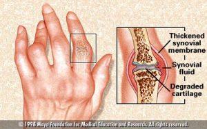 arthritis-sendi autoimune