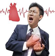 serangan-jantung