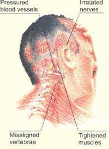 sakit-kepala-sebelah migrain